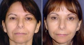 Facial Fat Grafting Patient 263