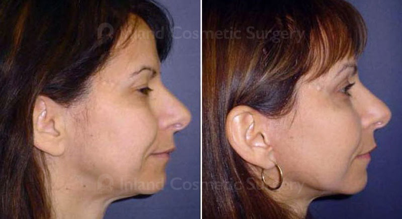 facial-fat-grafting-263c-inlandcs