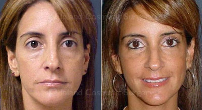 Facial Fat Grafting Patient 264