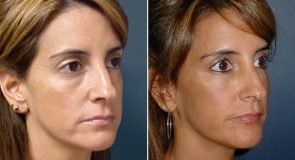 facial-fat-grafting-264b-inlandcs