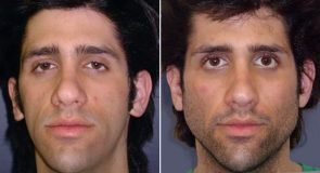 Facial Implants Patient 241