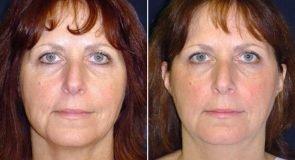 Neck Liposuction Patient 270