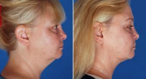 Neck Liposuction Patient 351