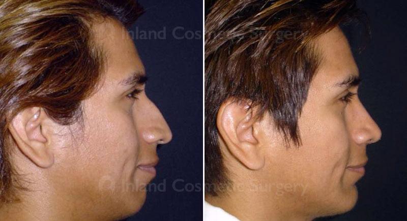 rhinoplasty-group-223c-inlandcs