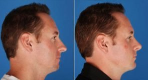 Rhinoplasty Patient 246