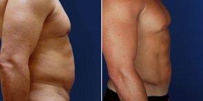 liposuction-vaser-tickle-15293c-inlandcs