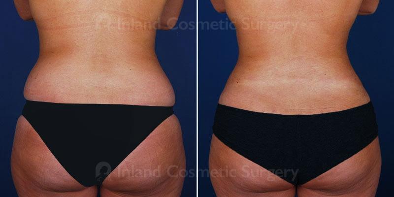 liposuction-vaser-tickle-15498d-inlandcs