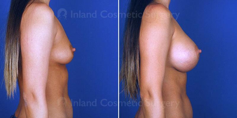 tuba-breast-augmentation-15598-c-inlandcs