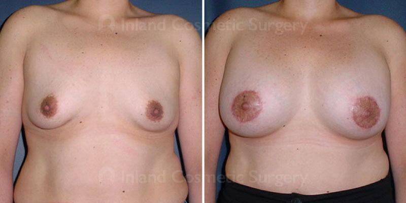 TUBA Breast Augmentation Patient
