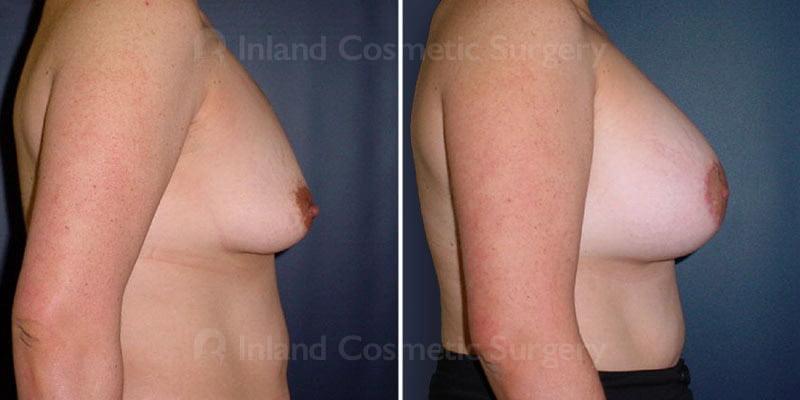 tuba-breast-augmentation-15721c-inlandcs