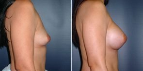 tuba-breast-augmentation-15726c-inlandcs