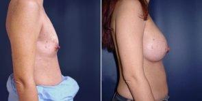 tuba-breast-augmentation-15752c-inlandcs
