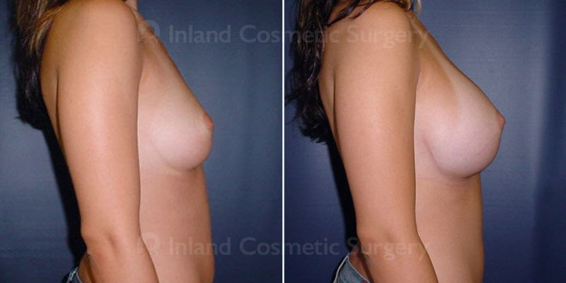 tuba-breast-augmentation-15767c-inlandcs
