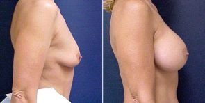 tuba-breast-augmentation-15815c-inlandcs