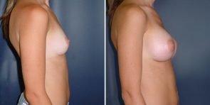 tuba-breast-augmentation-15832c-inlandcs