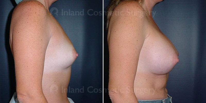 tuba-breast-augmentation-15838c-inlandcs