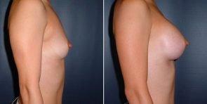 tuba-breast-augmentation-15855c-inlandcs