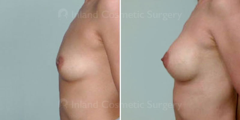 tuba-breast-augmentation-272c-inlandcs