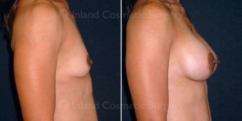 tuba-breast-augmentation-279-c-inlandcs