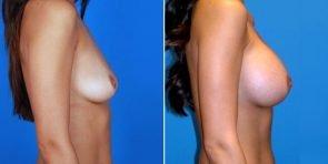 tuba-breast-augmentation-350c-inlandcs
