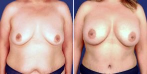 TUBA Breast Augmentation Patient