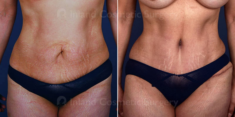 tummy-tuck-liposuction-15732a-inlandcs