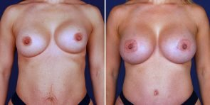 Breast Augmentation Revision Patient