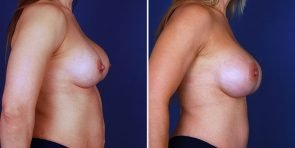 breast-implant-revision-15488c-inlandcs