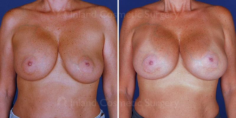 breast-implant-revision-15493a-inlandcs