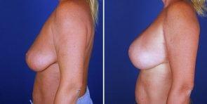 breast-implant-revision-15493c-inlandcs