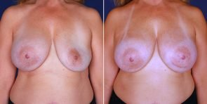 Breast Implant Replacement Patient