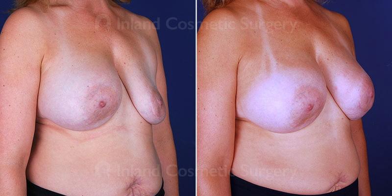 breast-implant-revision-15563b-inlandcs