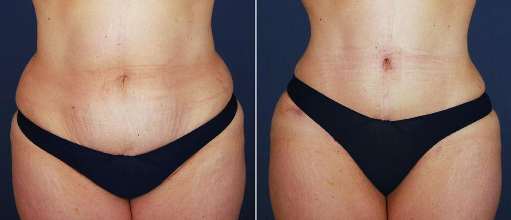 What's the Key to a Superb, Natural-Looking Tummy Tuck? It's All in the Belly Button.
