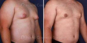 gynecomastia-liposuction-vaser-16574-b-inlandcs