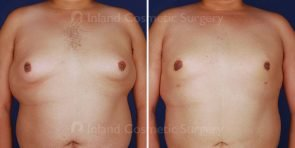gynecomastia-liposuction-vaser-tickle-16581a-inlandcs