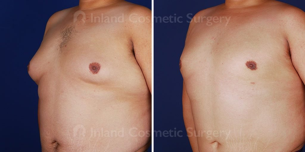 gynecomastia-liposuction-vaser-tickle-16581b-inlandcs