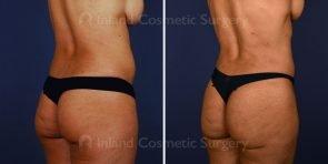liposuction-vaser-bbl-17069b-inlandcs