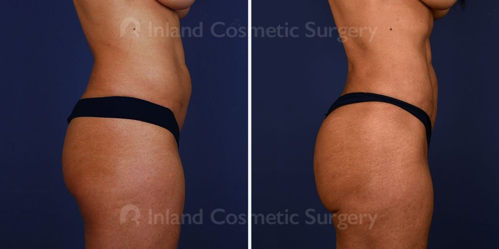 liposuction-vaser-bbl-17069c-inlandcs