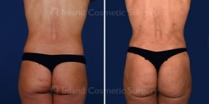liposuction-vaser-bbl-17069d-inlandcs