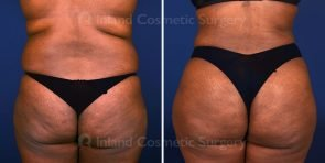 Liposuction and Brazilian Butt Lift