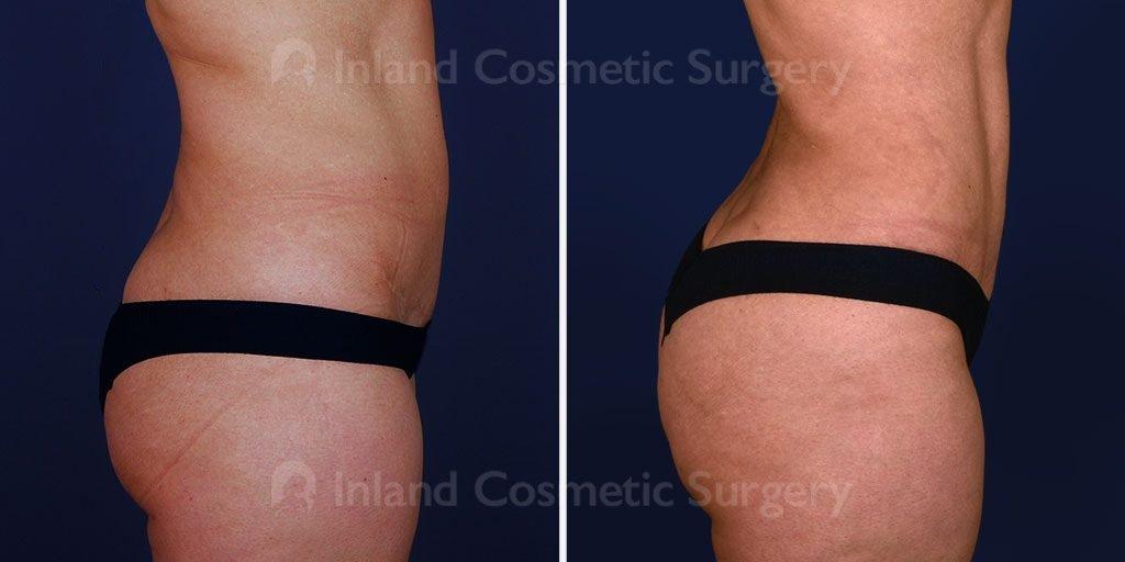 liposuction-vaser-tickle-bbl-17082c-inlandcs