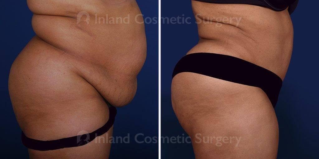 tummy-tuck-liposuction-tickle-16817c-inlandcs