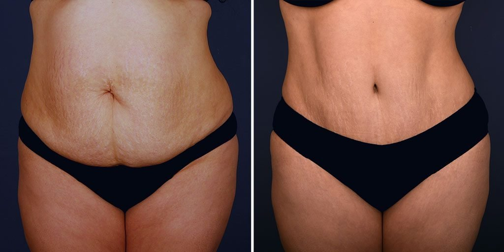 tummy-tuck-liposuction-tickle-16826a-inlandcs