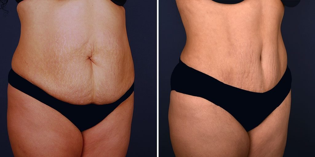tummy-tuck-liposuction-tickle-16826b-inlandcs