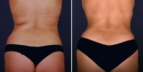 tummy-tuck-liposuction-tickle-16826d-inlandcs