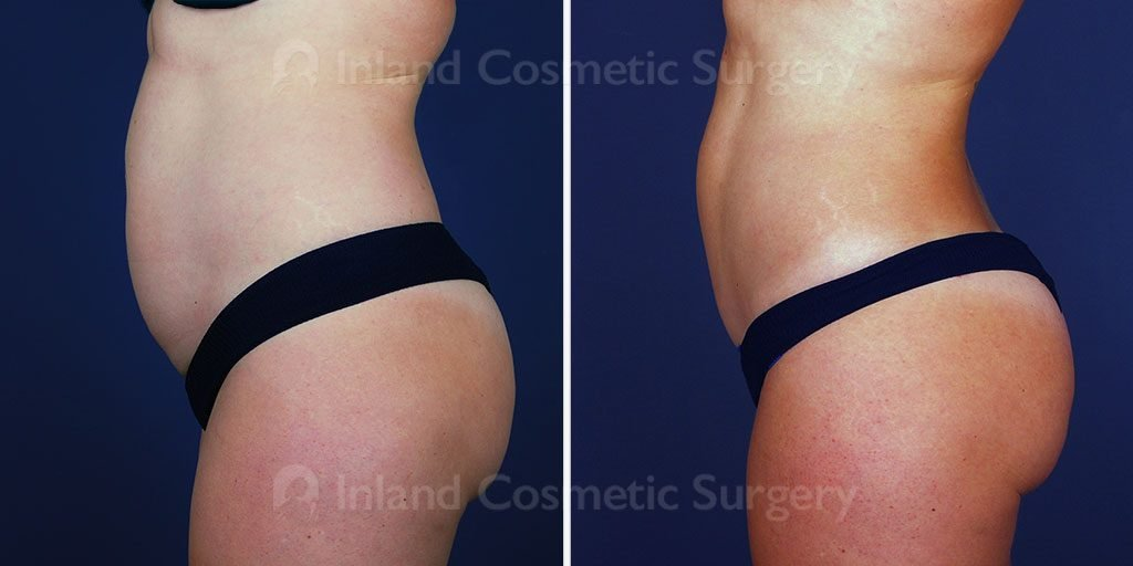 tummy-tuck-liposuction-vaser-tickle-16608c-inlandcs