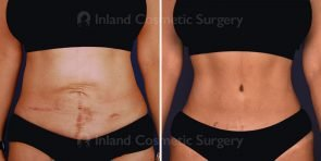 tummy-tuck-mini-liposuction-tickle-16594a-inlandcs