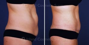 tummy-tuck-vaser-liposuction-15482c-inlandcs