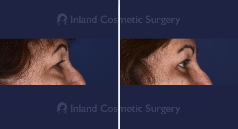 eyelid-lift-17019c-inlandcs