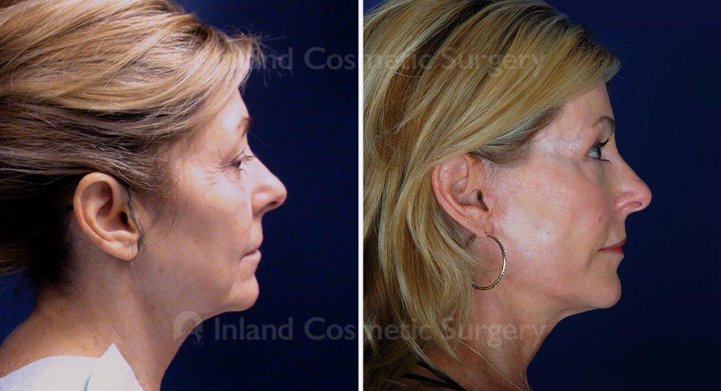 facelift-eyelid-lift-co2-laser-15698c-inlandcs